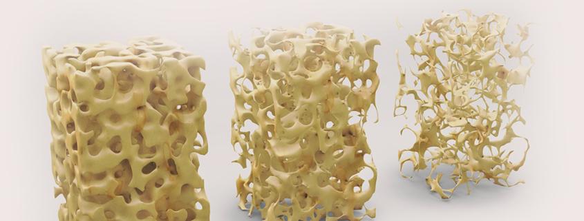Bilder mit verschiedenen Knochendichten