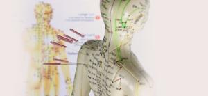 Akupunktur-Puppe mit Akupunkturnadeln